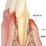 歯周病で歯がグラグラしています。歯科医院で歯の掃除をすれば揺れは止まりますか?
