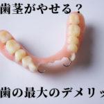 入れ歯を使い続け歯茎と骨がやせ細ってきた